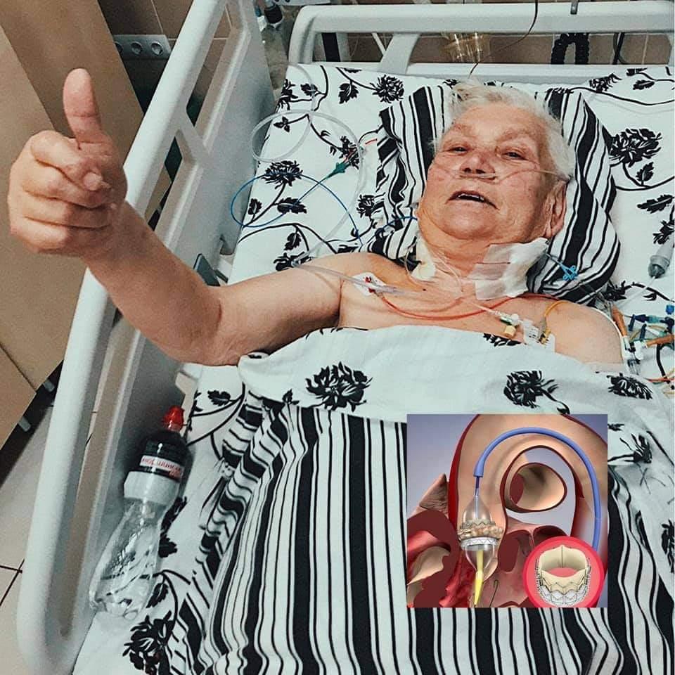 В Украине провели уникальную операцию на сердце без единого разреза