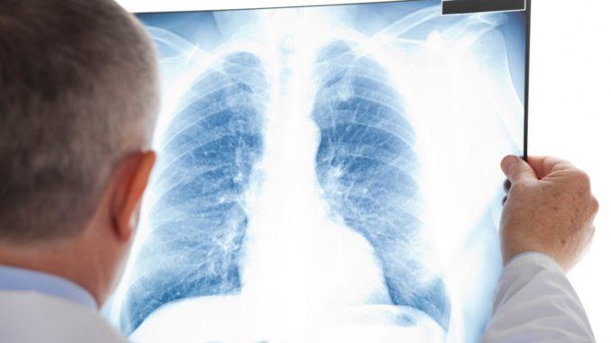 За год в Украине выявили почти 18 тыс. случаев туберкулеза. Без лечения умирает до 45% больных